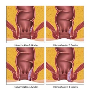 haemorrhoiden grad 1 - 4